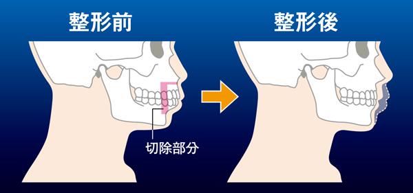 頭部顎部01